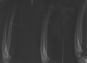 Xavier's X-Ray showing the Greenstick Fracture - 06/02/2008