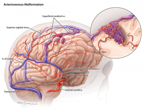 Arteriovenous Malformation (AVM)